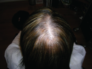 Causes of Fine Hair and Hair loss