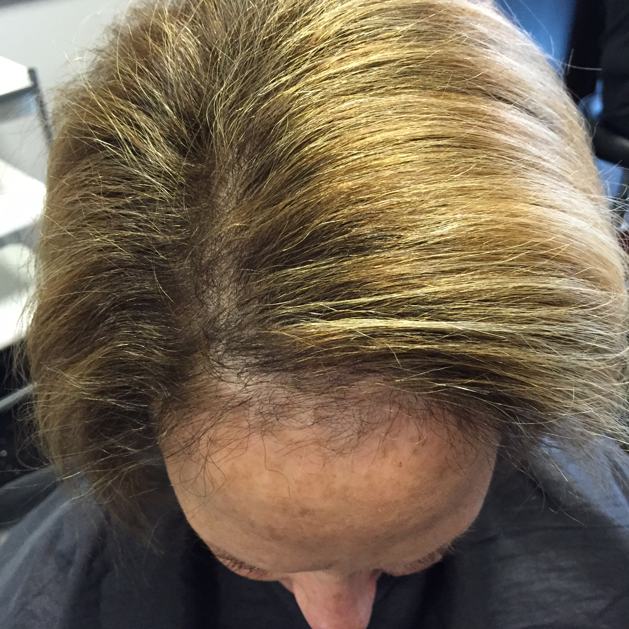 Causes And Solutions Of Hair Thinning In Women The
