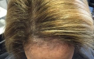 Female hairloss Dallas